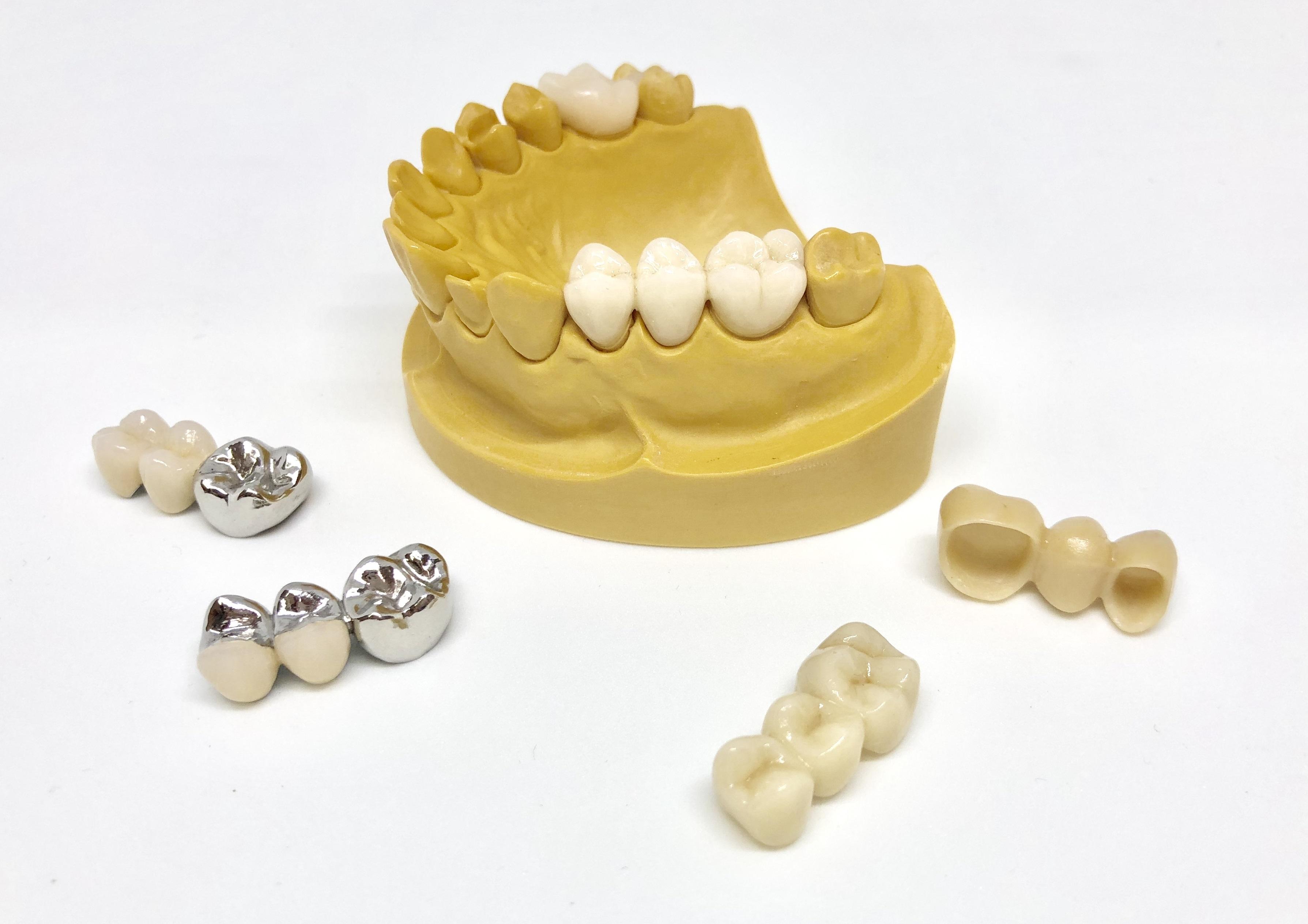 Zahn Wurzel Querschnitt